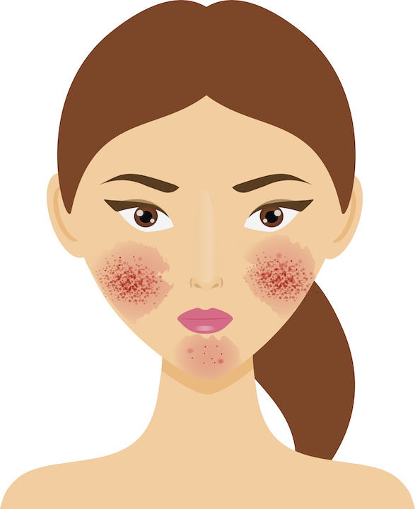 rosacea purging or breaking out