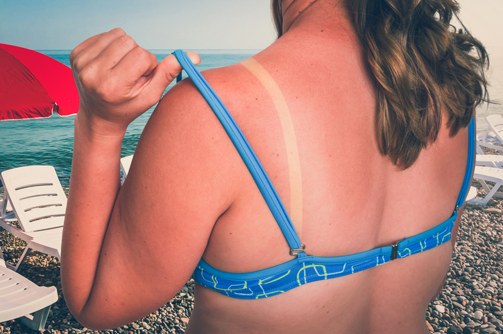 5 Quick Tips To Instantly Soothe a Sunburn