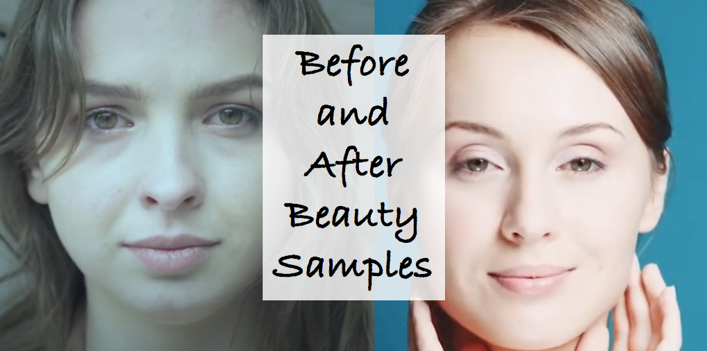 Before And After Samples Campaign
