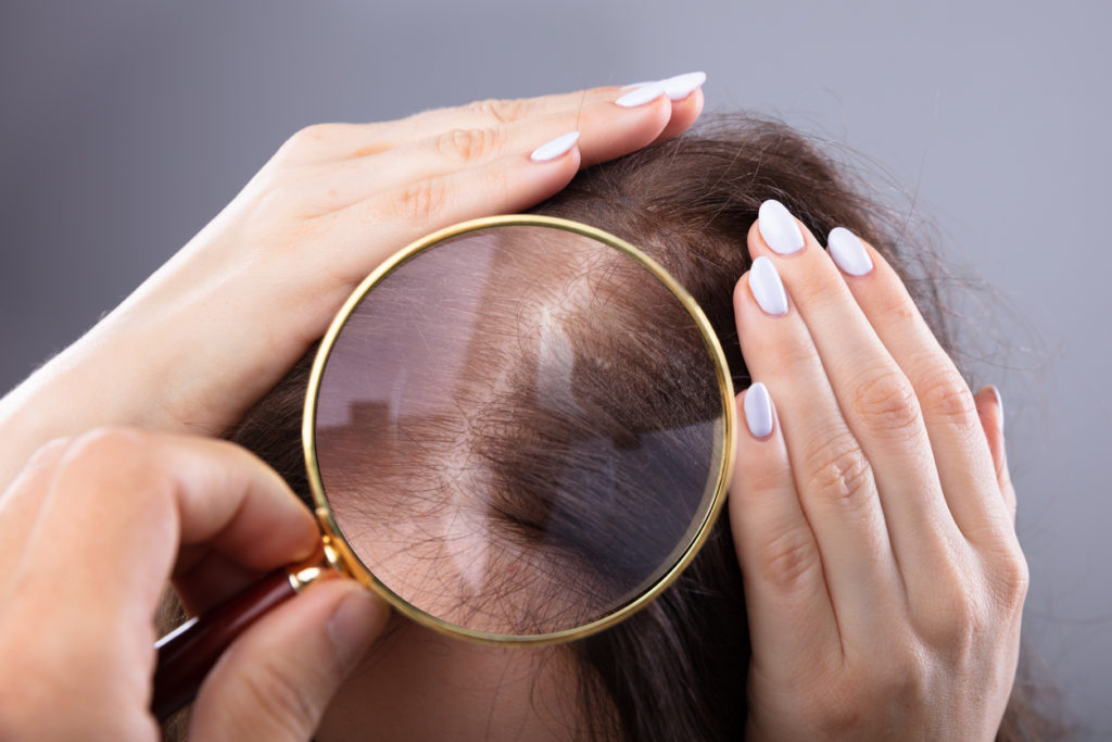 Diving Deeper into Hair Loss – The Reasons and The Remedies You Should Know About