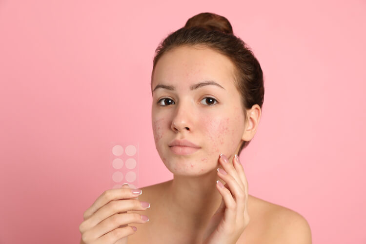 What Are Acne Patches and Do They Actually Help Get Rid Of Pimples?