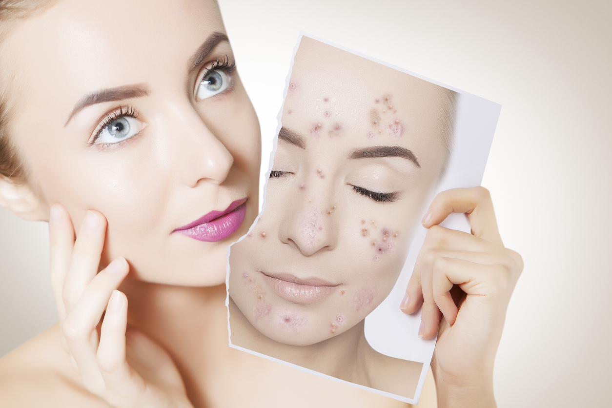 These Ingredients Help Fade Brown Spots Caused By Pimples