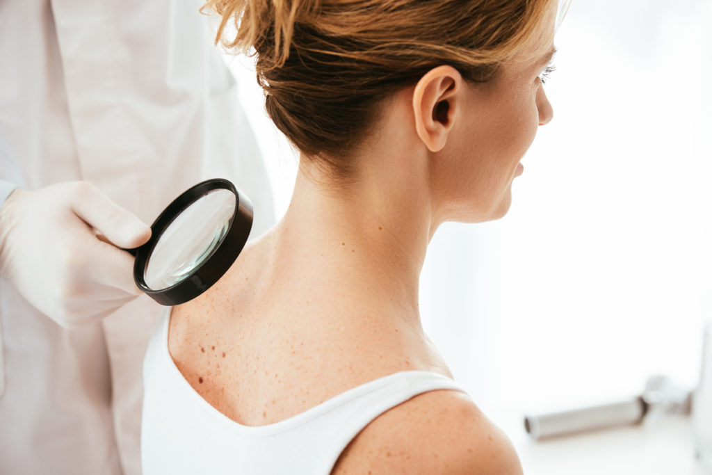 surgery-free skin cancer test