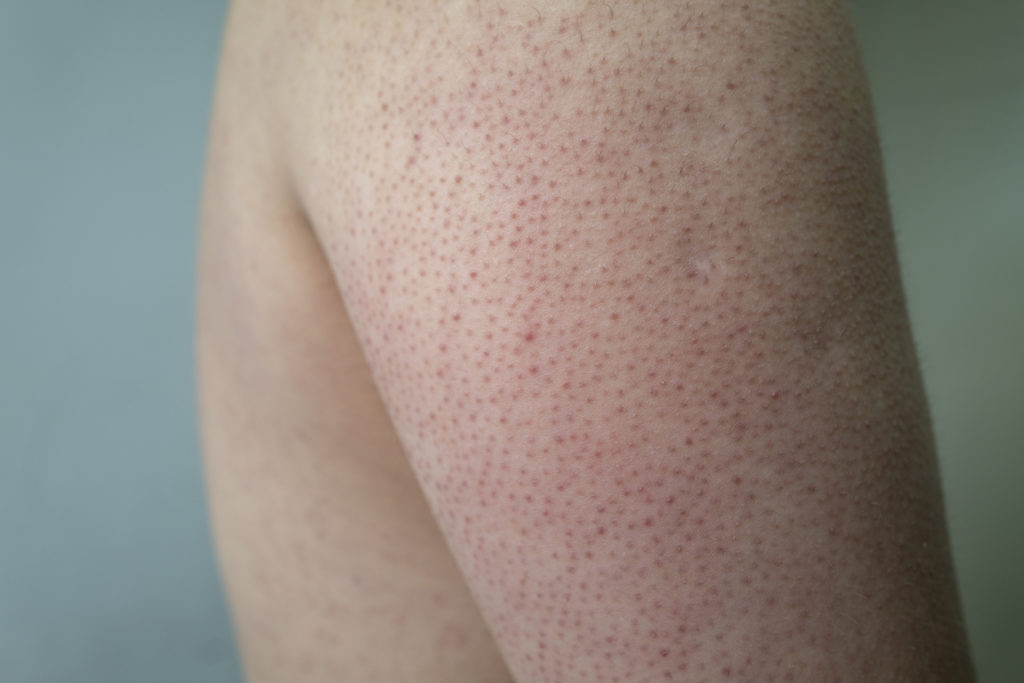What Is Kerastosis Pilaris and How To Get Rid of This Common Skin Condition